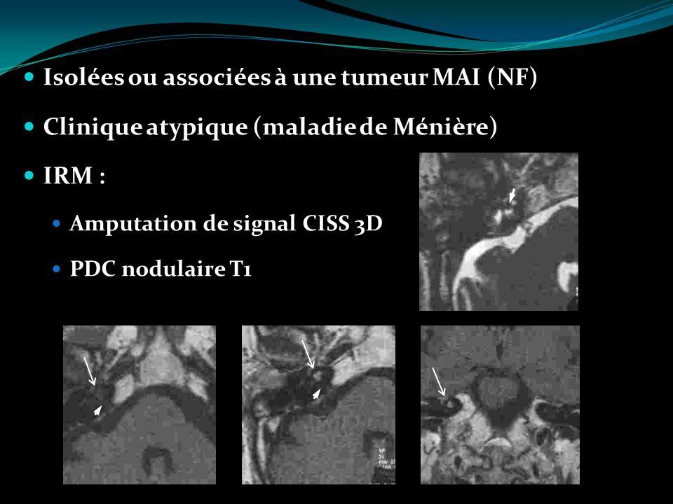 Isolées ou associées à une tumeur MAI (NF)