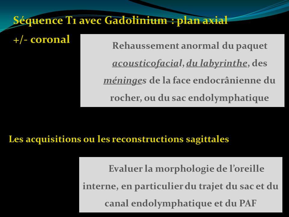 Séquence T1 avec Gadolinium : plan axial +/- coronal