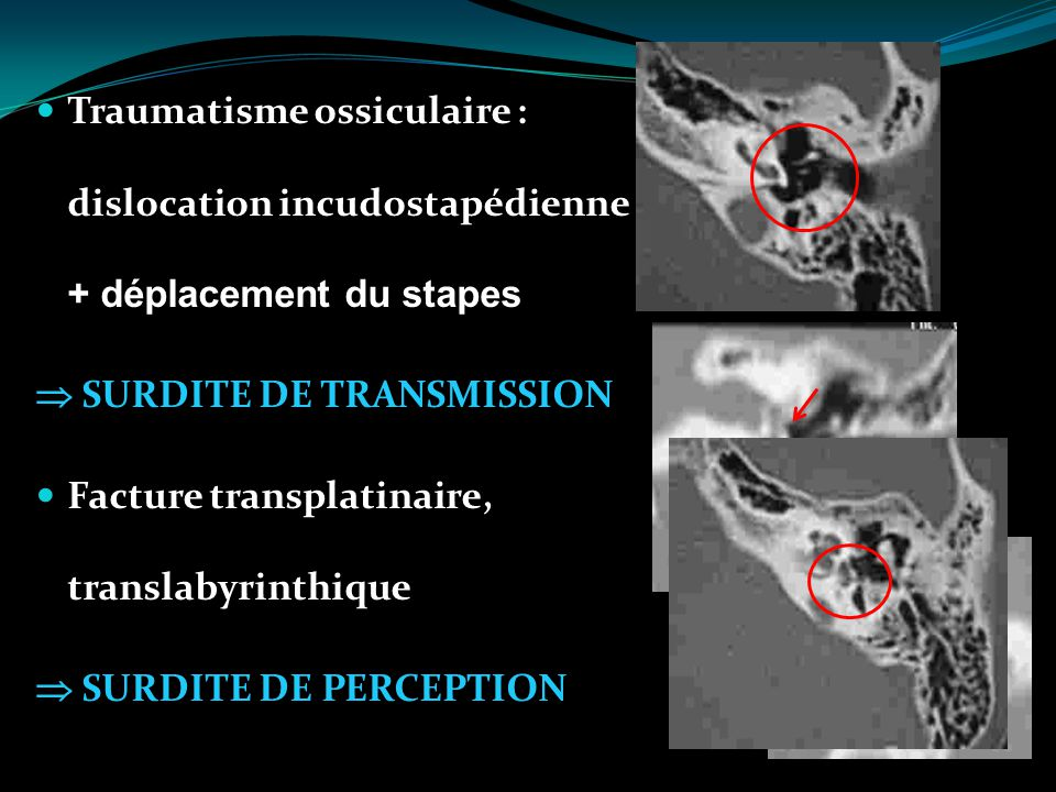 Traumatisme ossiculaire : dislocation incudostapédienne + déplacement du stapes