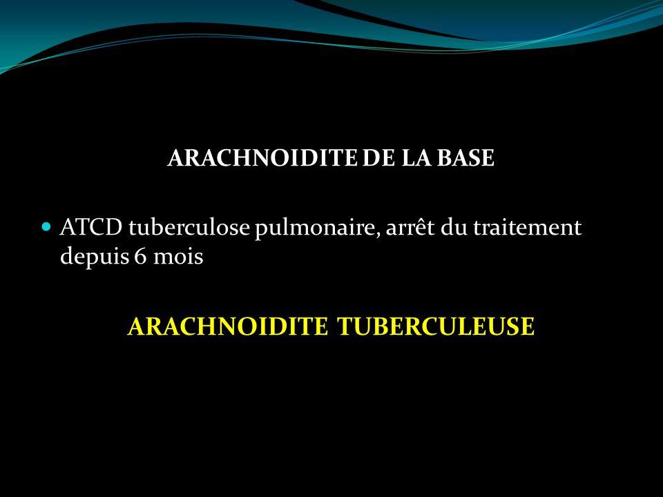 ARACHNOIDITE DE LA BASE ARACHNOIDITE TUBERCULEUSE