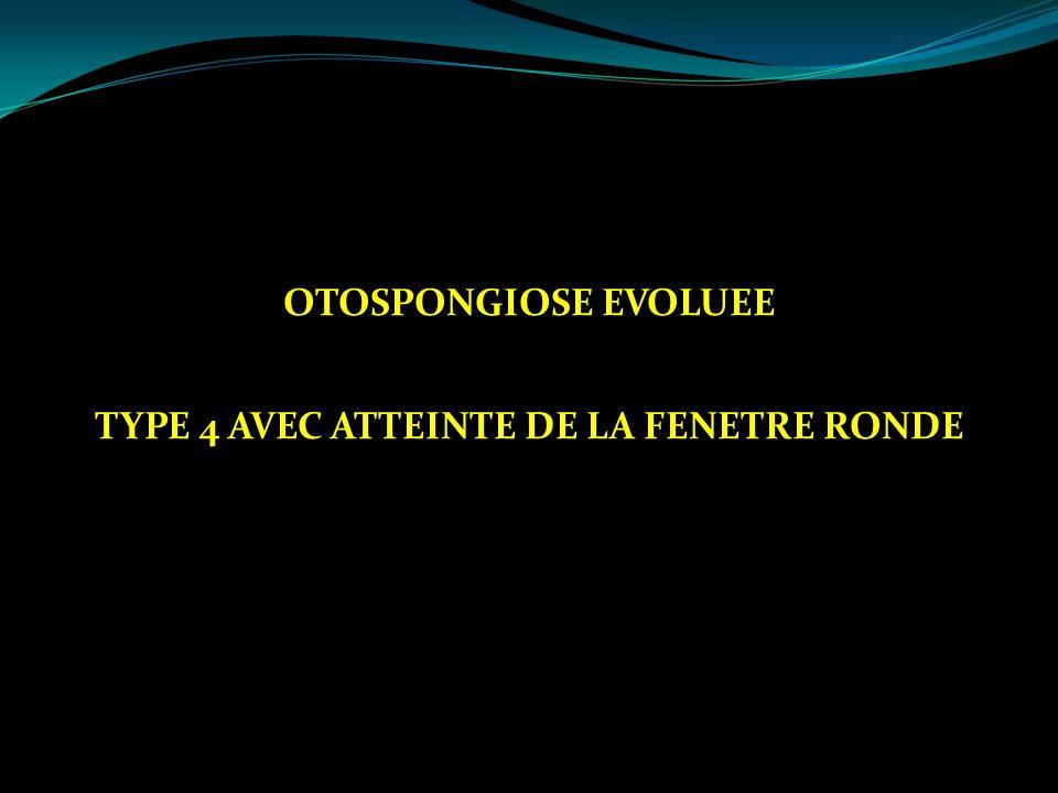 OTOSPONGIOSE EVOLUEE TYPE 4 AVEC ATTEINTE DE LA FENETRE RONDE