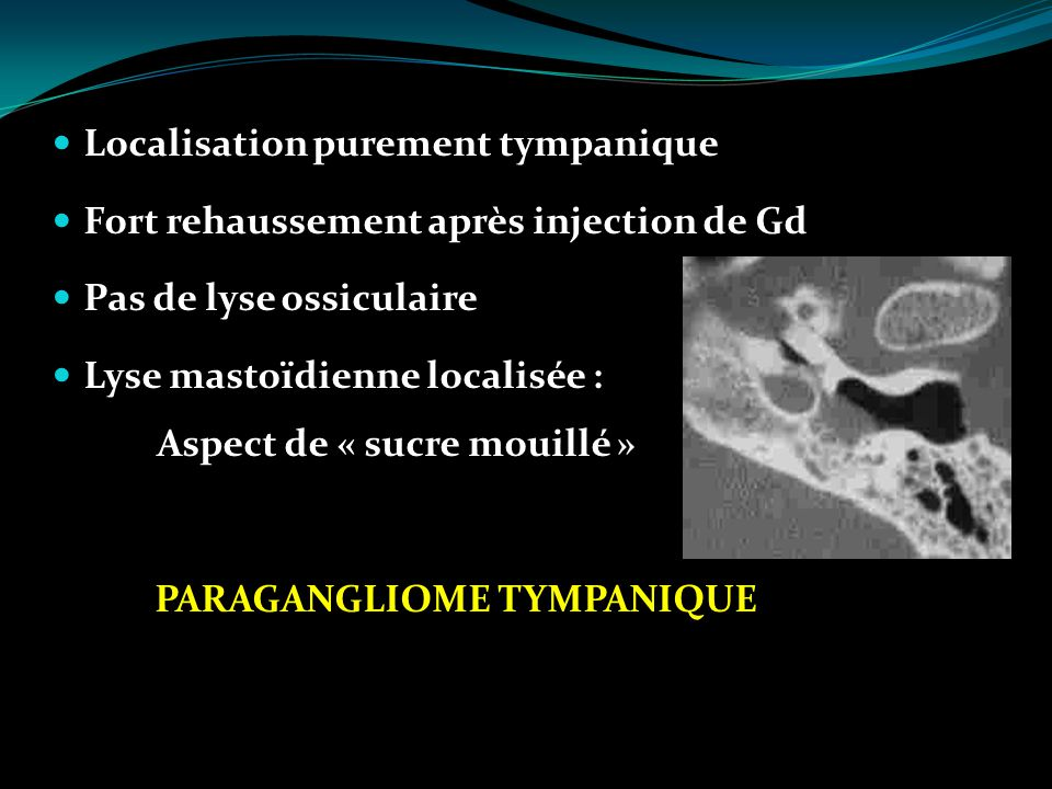 PARAGANGLIOME TYMPANIQUE