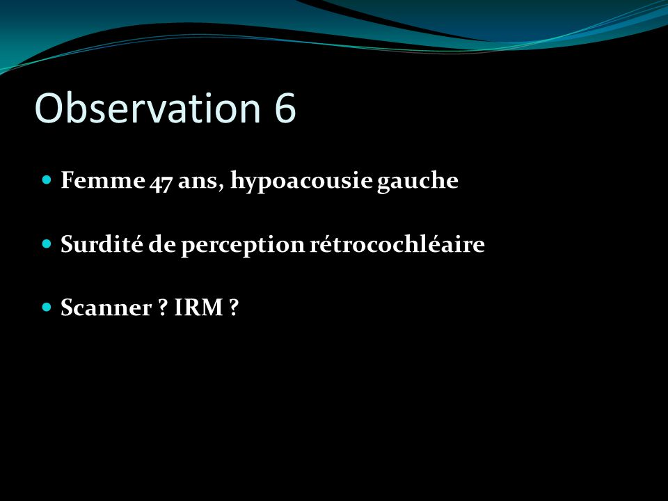 Observation 6 Femme 47 ans, hypoacousie gauche