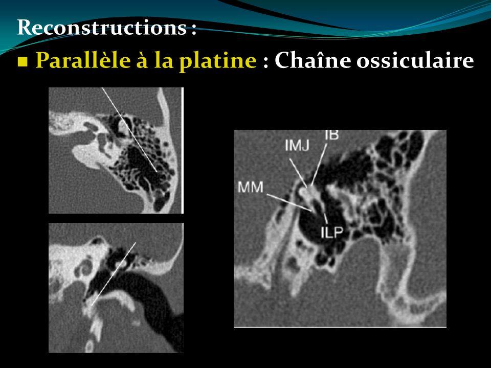 Parallèle à la platine : Chaîne ossiculaire