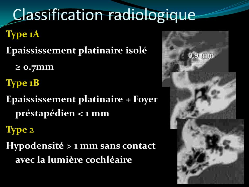 Classification radiologique