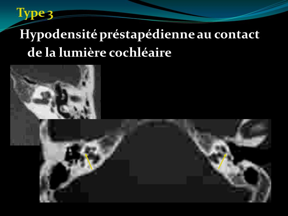 Type 3 Hypodensité préstapédienne au contact de la lumière cochléaire