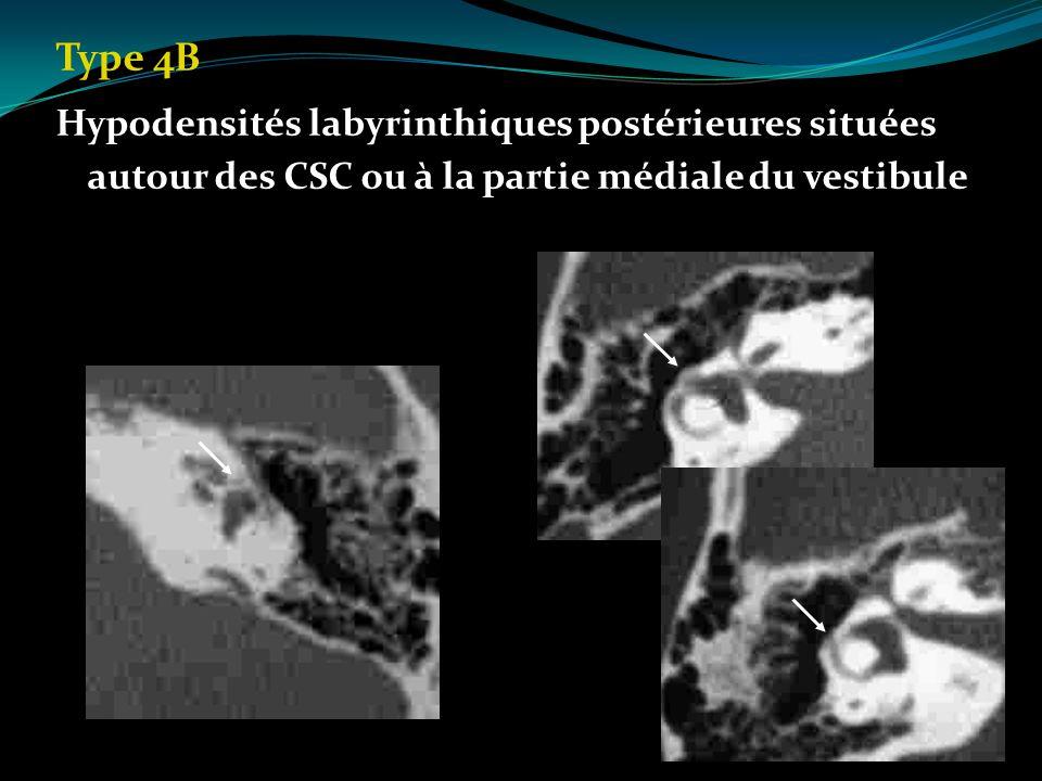 Type 4B Hypodensités labyrinthiques postérieures situées autour des CSC ou à la partie médiale du vestibule.