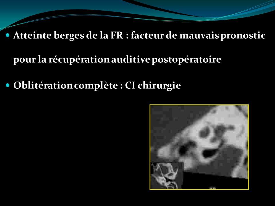 Atteinte berges de la FR : facteur de mauvais pronostic pour la récupération auditive postopératoire