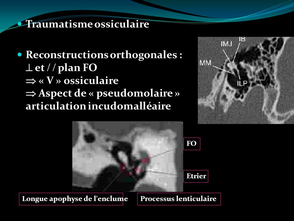 Traumatisme ossiculaire