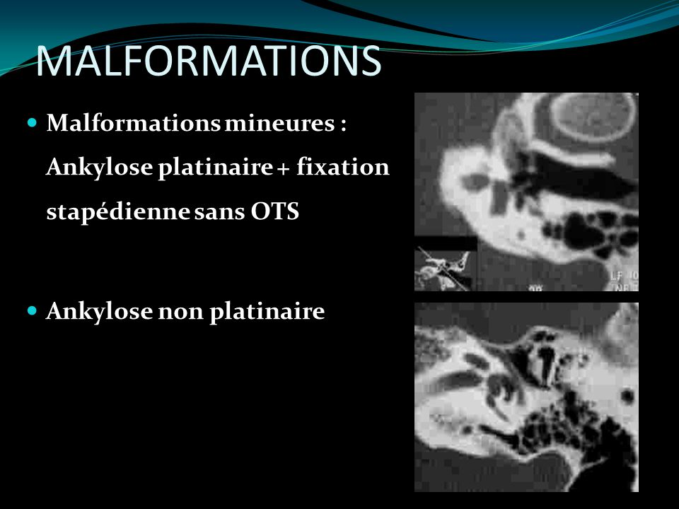 MALFORMATIONS Malformations mineures : Ankylose platinaire + fixation stapédienne sans OTS.