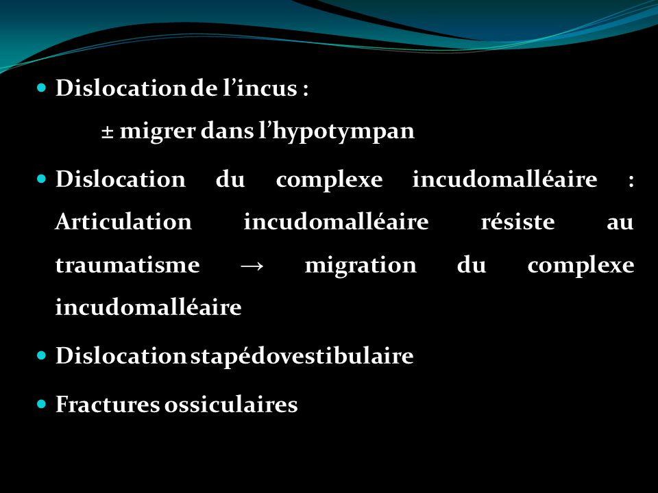 Dislocation de l'incus : ± migrer dans l'hypotympan