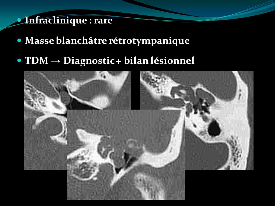Infraclinique : rare Masse blanchâtre rétrotympanique TDM → Diagnostic + bilan lésionnel