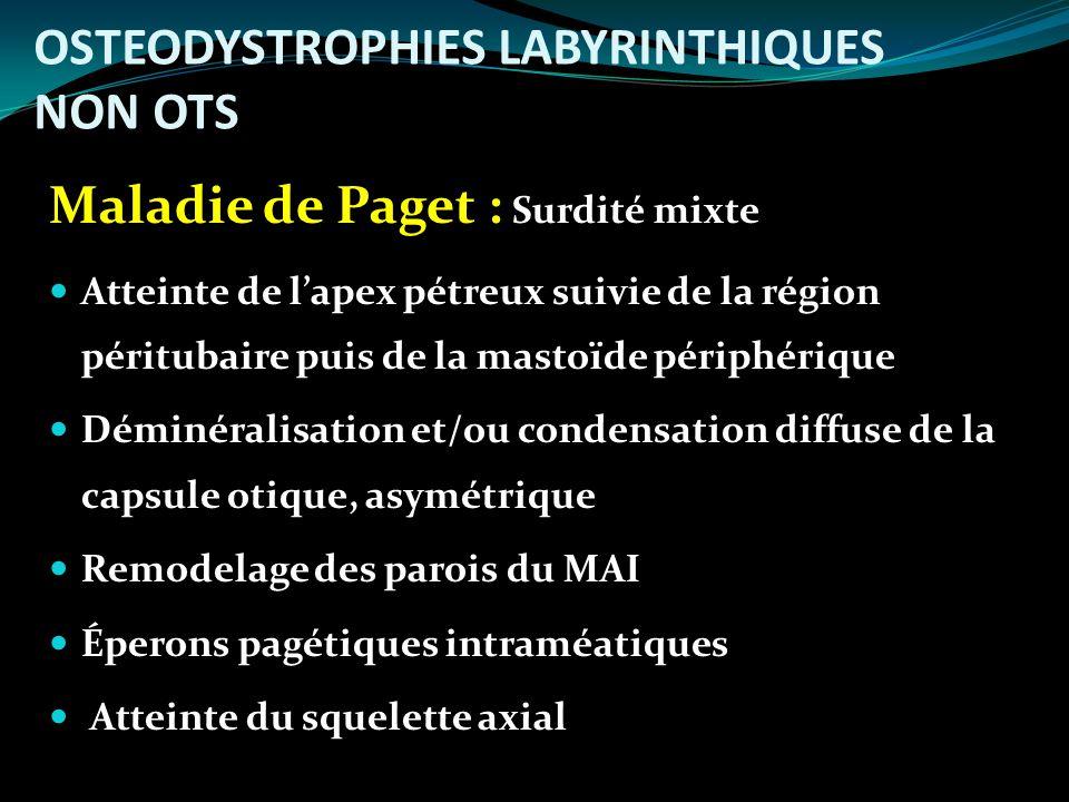 OSTEODYSTROPHIES LABYRINTHIQUES NON OTS