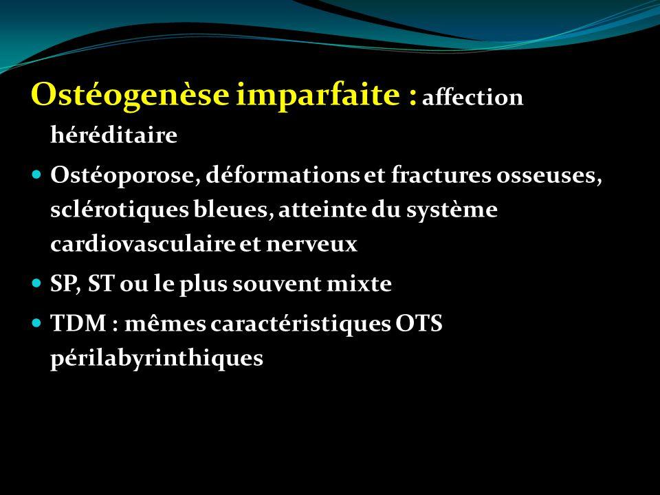Ostéogenèse imparfaite : affection héréditaire