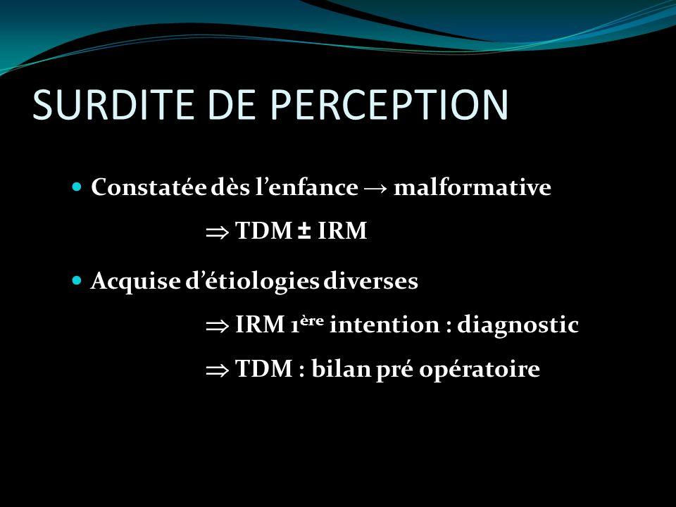 SURDITE DE PERCEPTION Constatée dès l'enfance → malformative  TDM ± IRM.