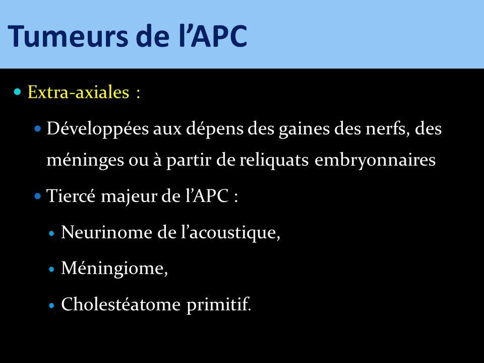 Tumeurs de l'APC Extra-axiales :