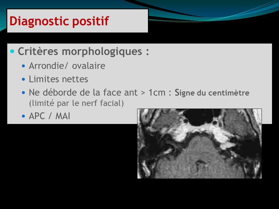 Diagnostic positif Critères morphologiques : Arrondie/ ovalaire