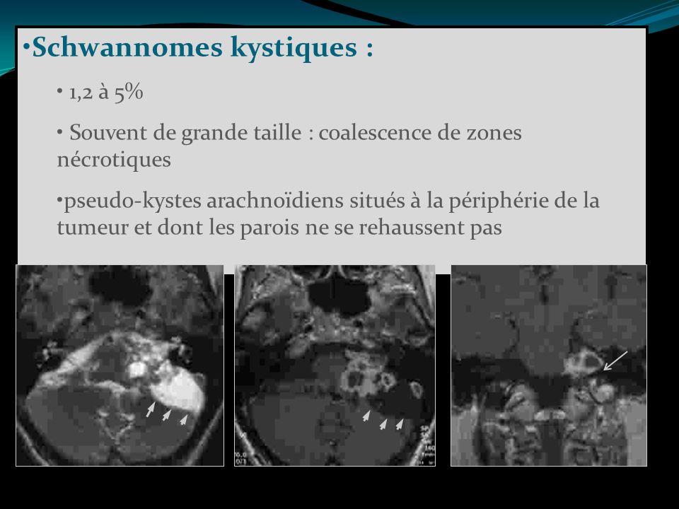 Schwannomes kystiques :