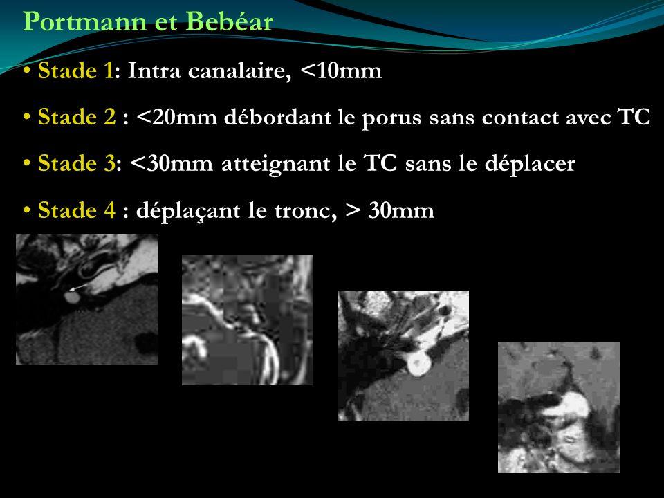 Portmann et Bebéar Stade 1: Intra canalaire, <10mm