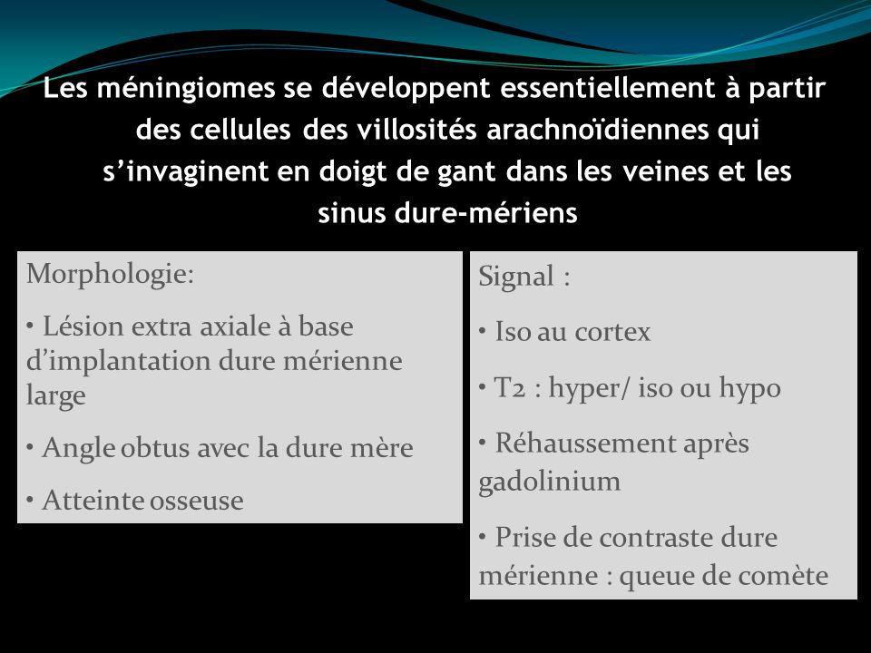 Les méningiomes se développent essentiellement à partir des cellules des villosités arachnoïdiennes qui s'invaginent en doigt de gant dans les veines et les sinus dure-mériens