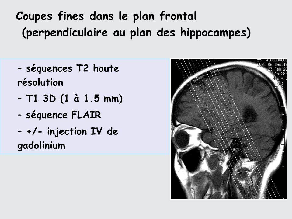 Coupes fines dans le plan frontal (perpendiculaire au plan des hippocampes)