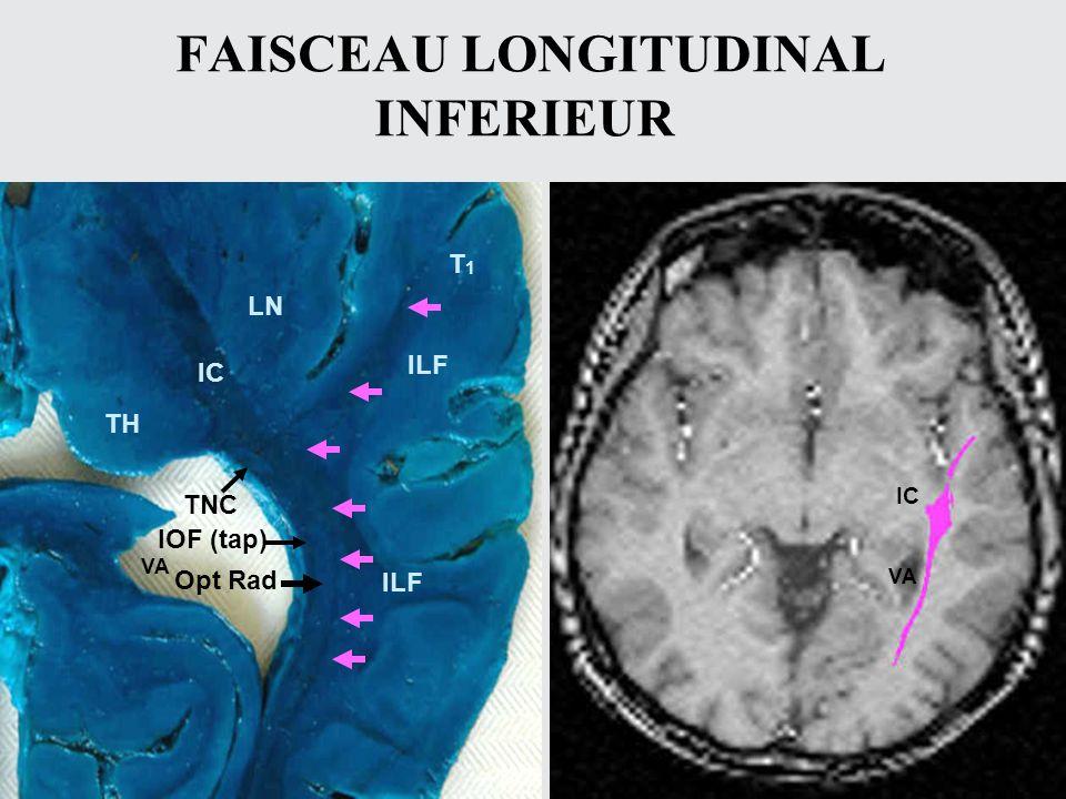 FAISCEAU LONGITUDINAL INFERIEUR