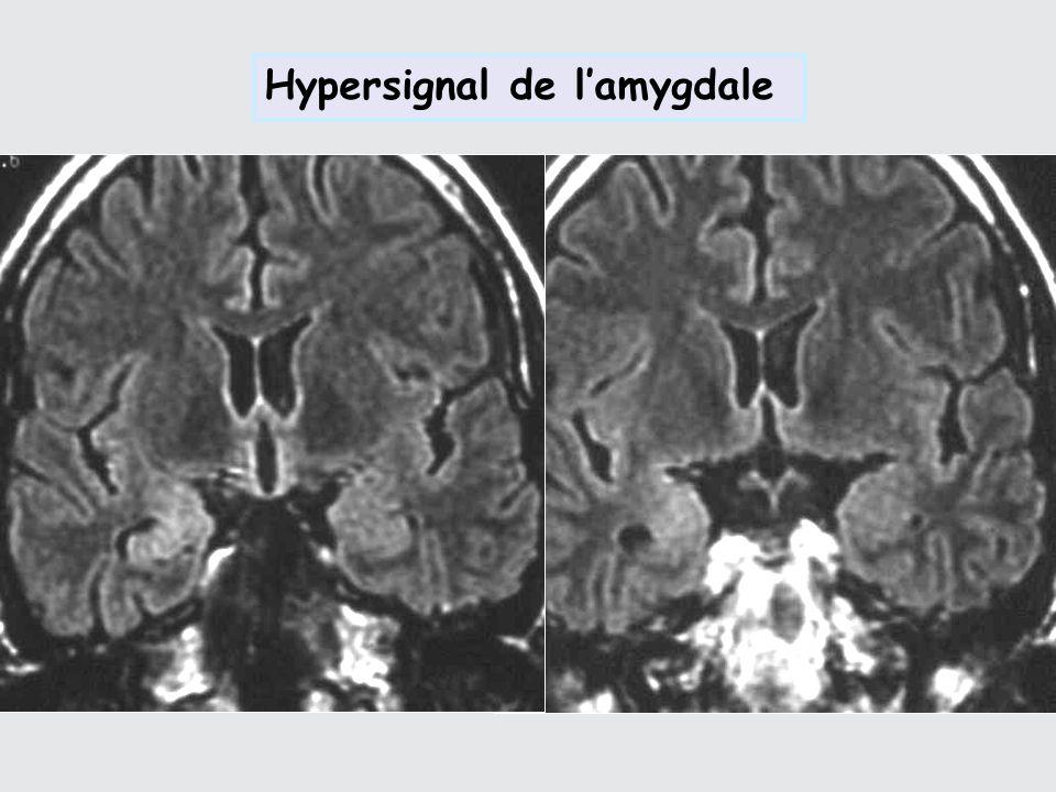 Hypersignal de l'amygdale