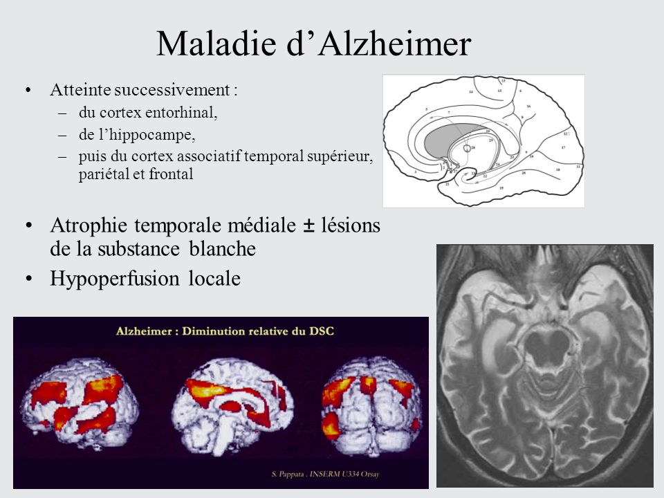 Maladie d'Alzheimer Atteinte successivement : du cortex entorhinal, de l'hippocampe,
