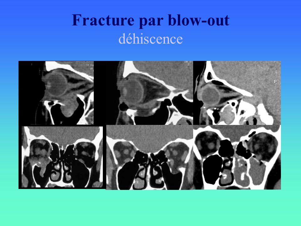 Fracture par blow-out déhiscence