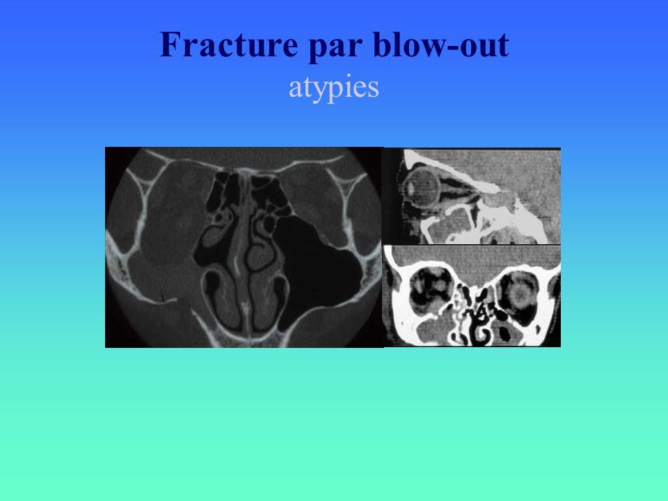 Fracture par blow-out atypies