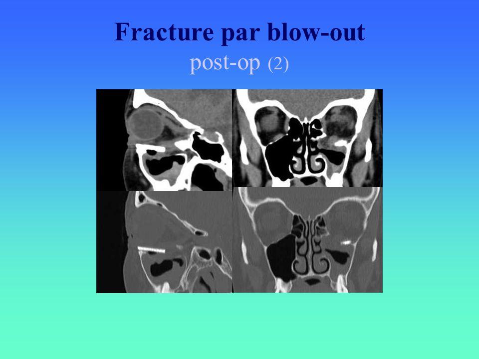 Fracture par blow-out post-op (2)
