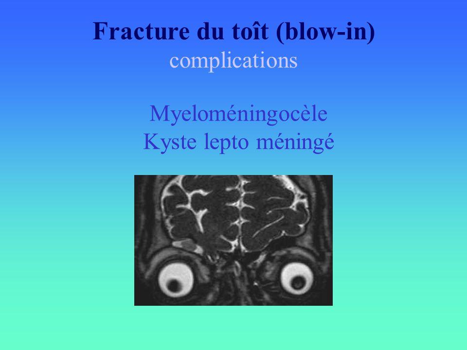 Fracture du toît (blow-in)