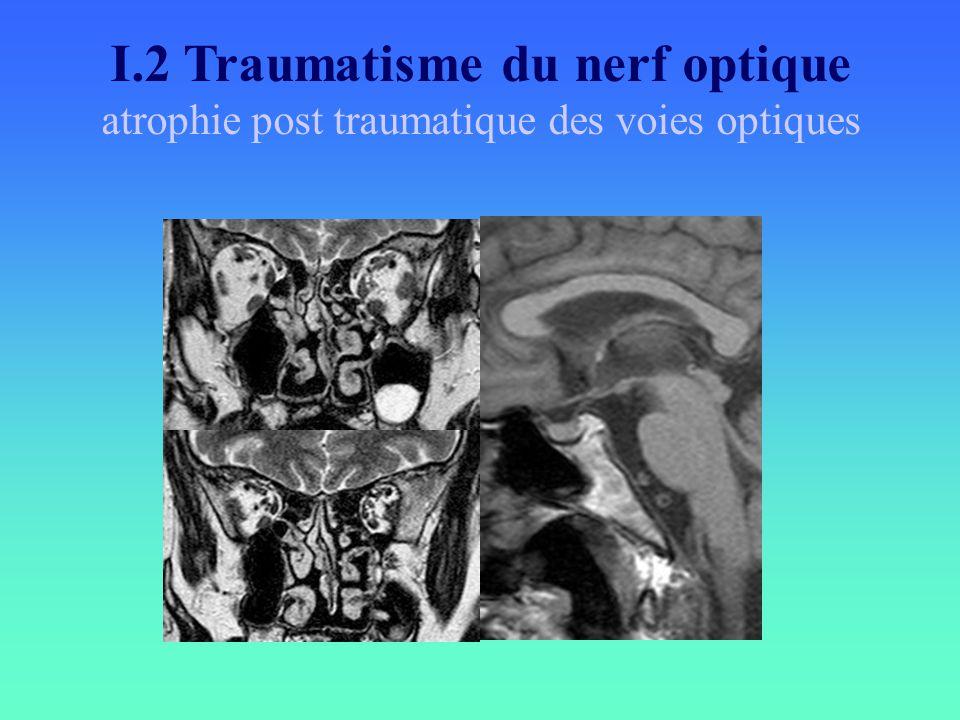 I.2 Traumatisme du nerf optique