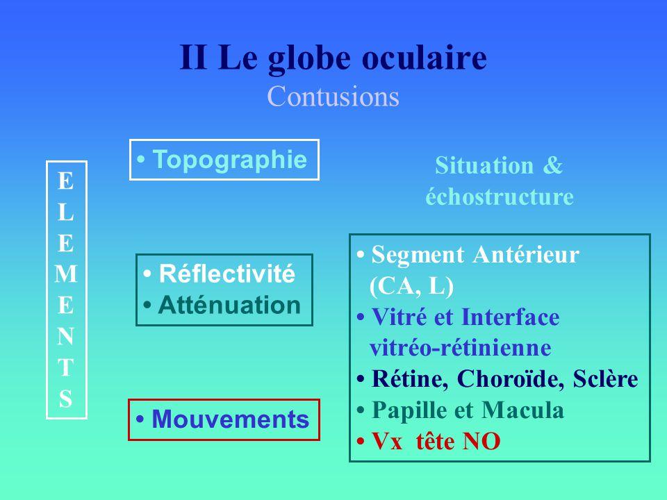 Situation & échostructure