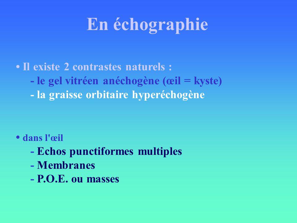 En échographie • Il existe 2 contrastes naturels :