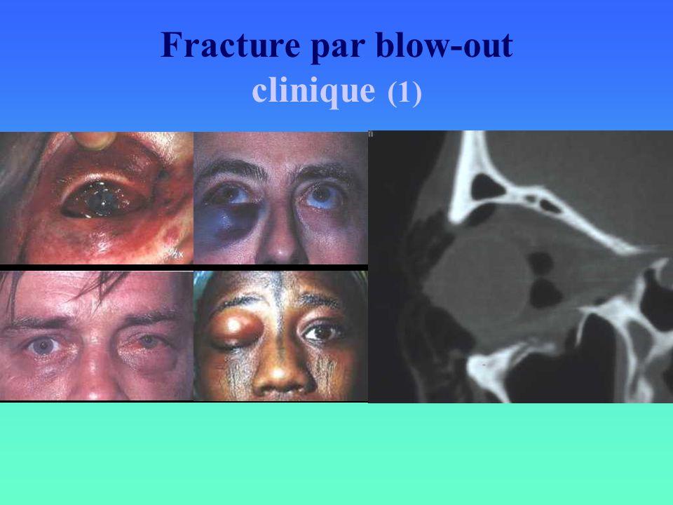 Fracture par blow-out clinique (1)