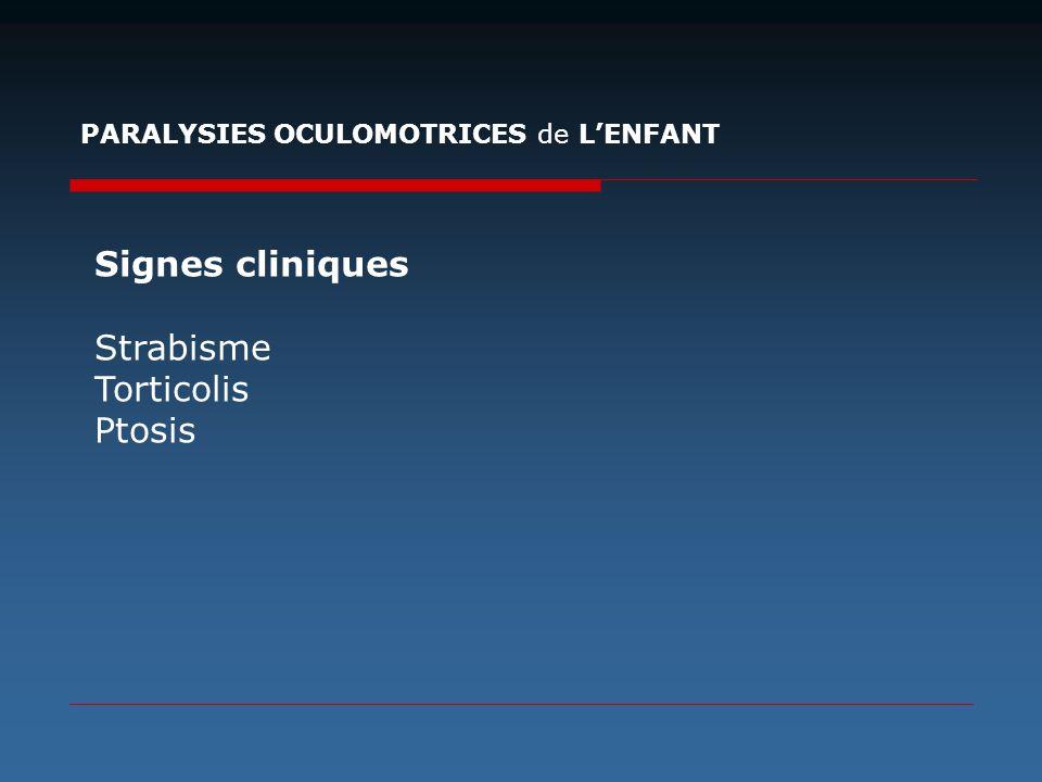 Signes cliniques Strabisme Torticolis Ptosis
