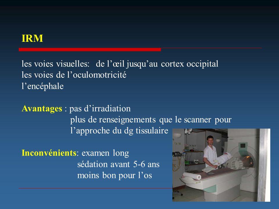 IRM les voies visuelles: de l'œil jusqu'au cortex occipital