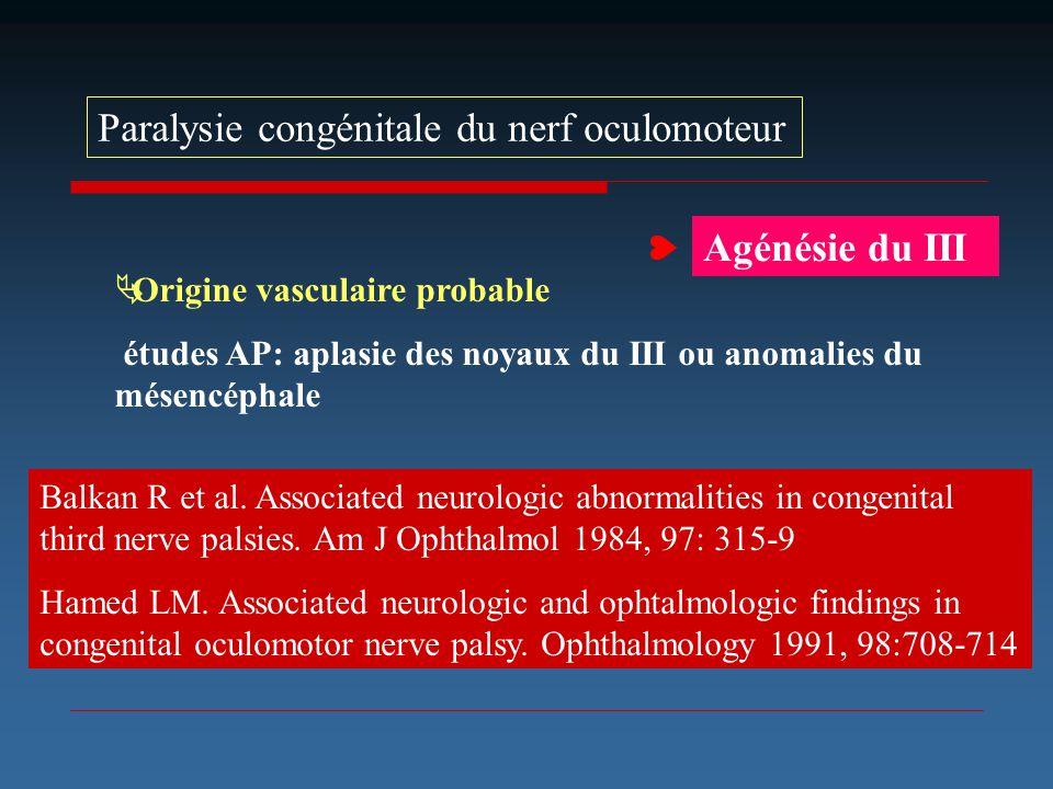  Paralysie congénitale du nerf oculomoteur Agénésie du III