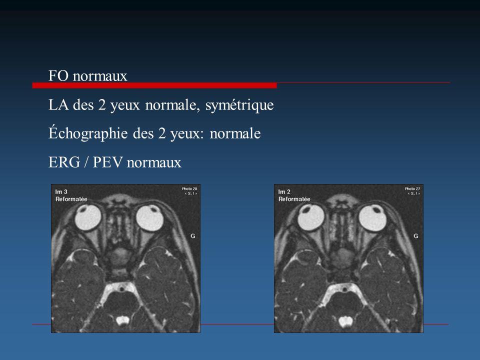 FO normaux LA des 2 yeux normale, symétrique Échographie des 2 yeux: normale ERG / PEV normaux