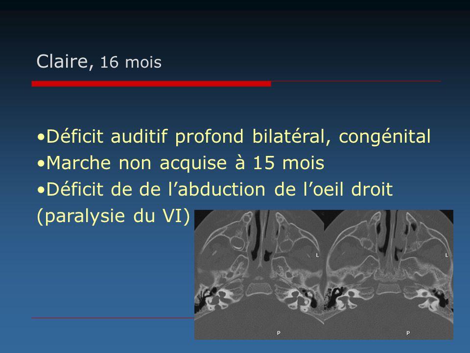 Claire, 16 mois Déficit auditif profond bilatéral, congénital. Marche non acquise à 15 mois. Déficit de de l'abduction de l'oeil droit.