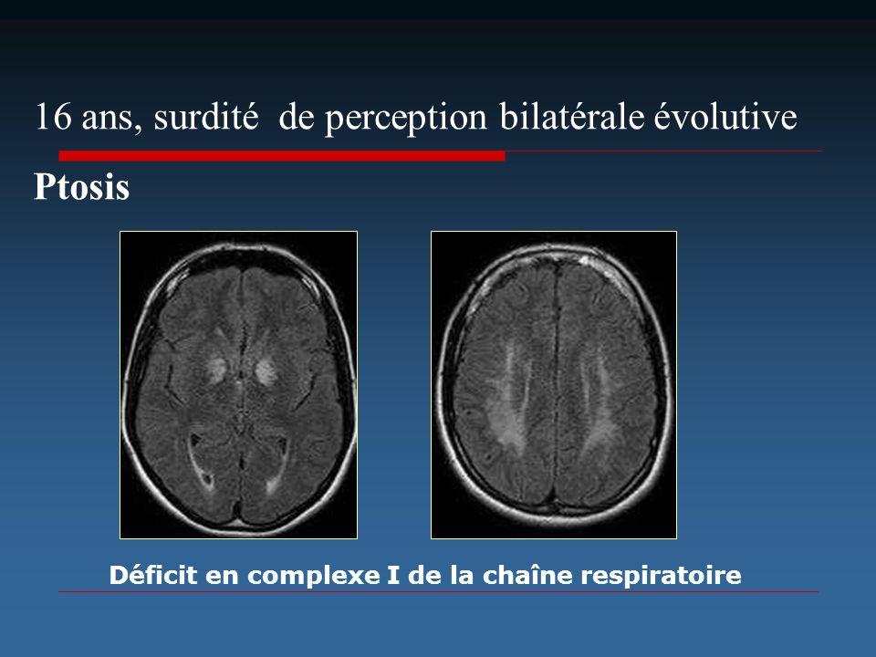 16 ans, surdité de perception bilatérale évolutive Ptosis