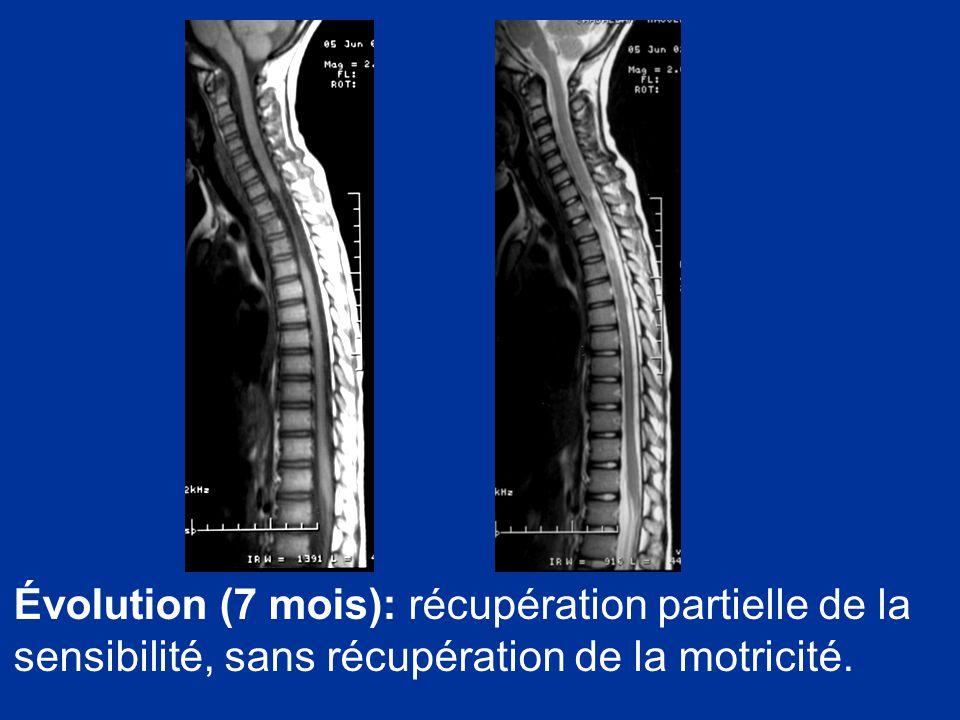 Évolution (7 mois): récupération partielle de la sensibilité, sans récupération de la motricité.