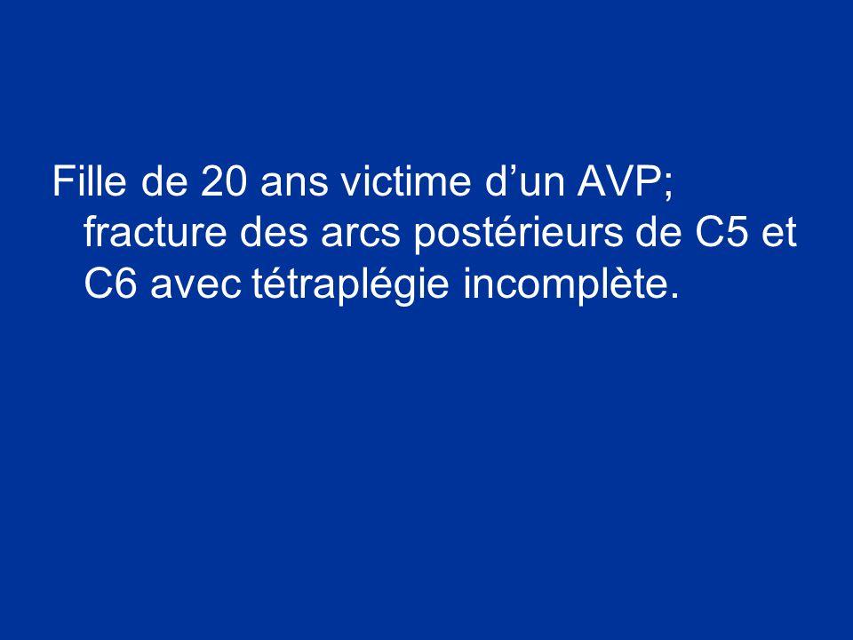 Fille de 20 ans victime d'un AVP; fracture des arcs postérieurs de C5 et C6 avec tétraplégie incomplète.