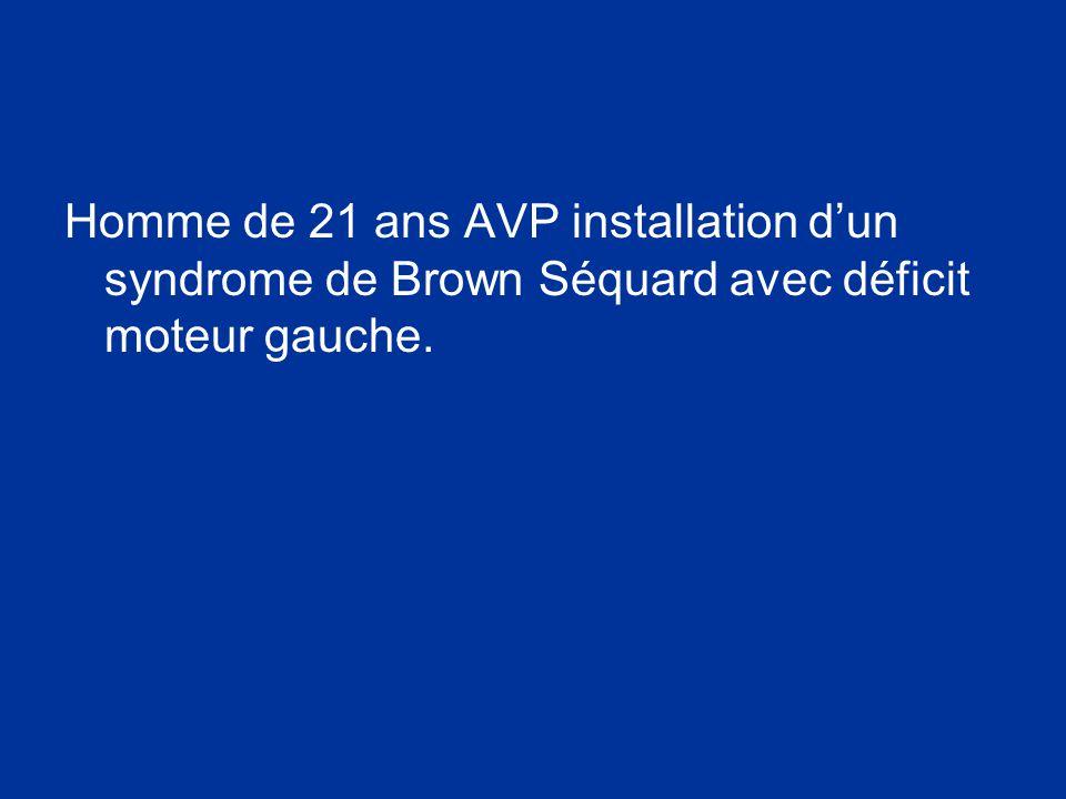 Homme de 21 ans AVP installation d'un syndrome de Brown Séquard avec déficit moteur gauche.