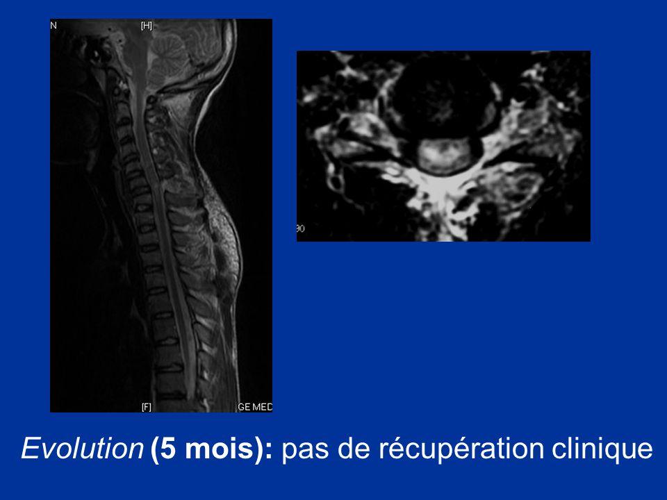 Evolution (5 mois): pas de récupération clinique