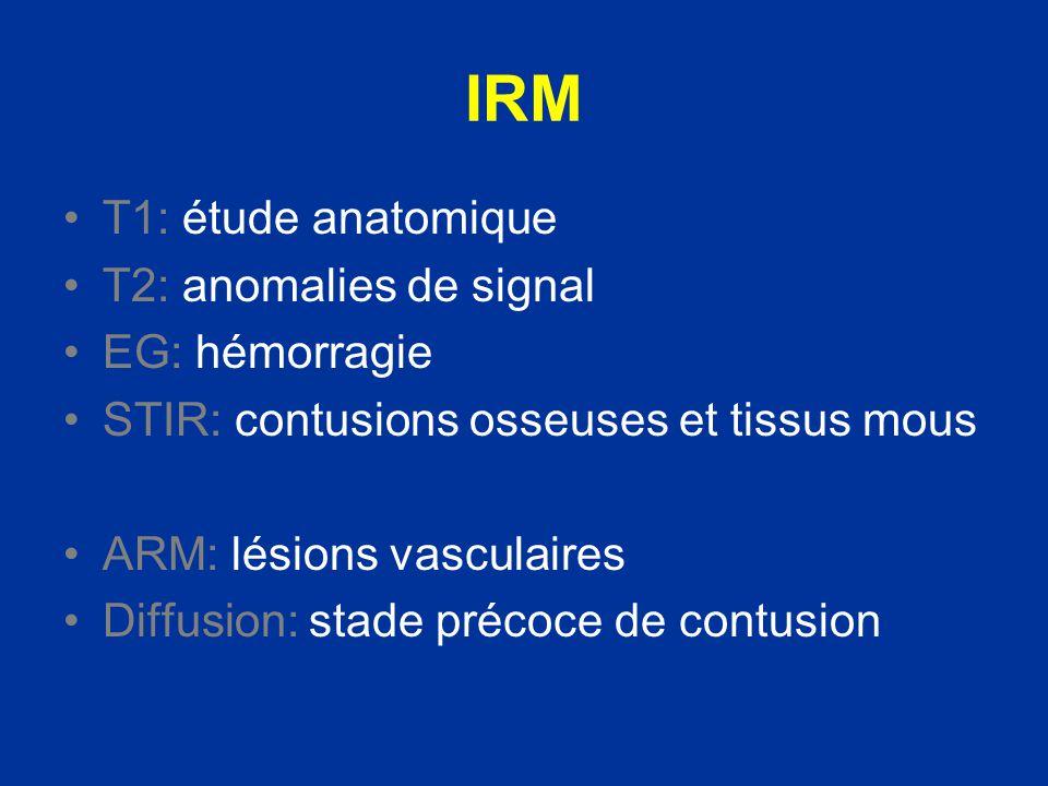 IRM T1: étude anatomique T2: anomalies de signal EG: hémorragie