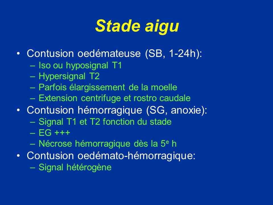 Stade aigu Contusion oedémateuse (SB, 1-24h):