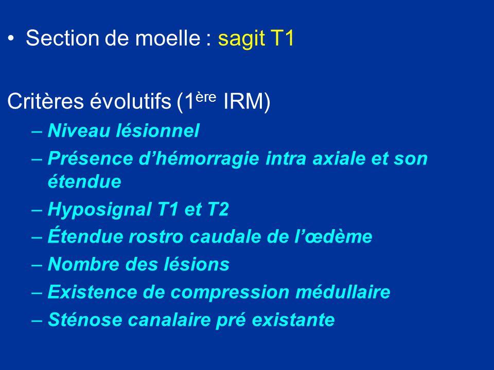 Section de moelle : sagit T1 Critères évolutifs (1ère IRM)