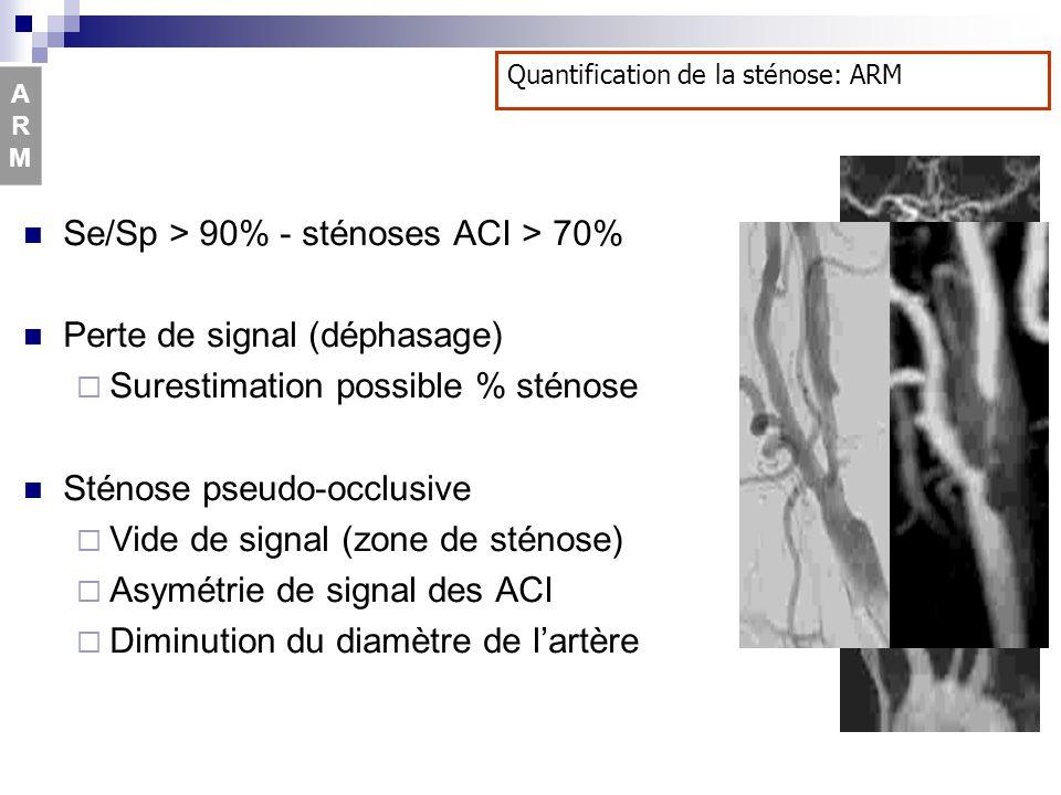 Se/Sp > 90% - sténoses ACI > 70% Perte de signal (déphasage)